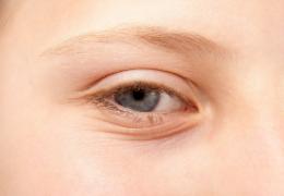 Come prendersi cura di un contorno occhi secco e segnato